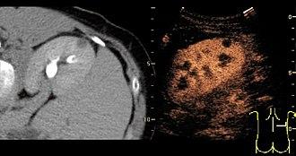 Contrast-enhanced ultrasound - Image: Contrast enhanced ultrasonography of benign lesion