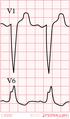De-LBBB (CardioNetworks ECGpedia).png