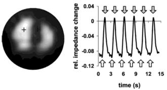 Electrical impedance tomography - Image: EIT ventilation study of infants Heinrich 2006