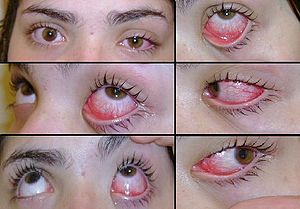 Example of conjunctivitis