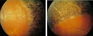 Retinal degeneration (rhodopsin mutation)