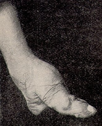Foot binding - A bound foot