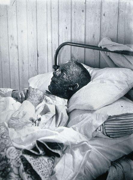 File:Gloucester smallpox epidemic, 1896; Ephraim Beard Wellcome V0031458.jpg