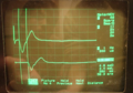Medizin-Nervenleitgeschwindigkeit-ablesen.png