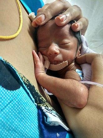 Kangaroo care - A Mother providing Kangaroo Mother Care to a preterm baby