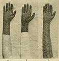 Operative surgery (1905) (14780693651).jpg