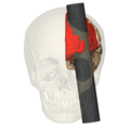 Phineas Gage injury - anterior view (frontal lobe).png