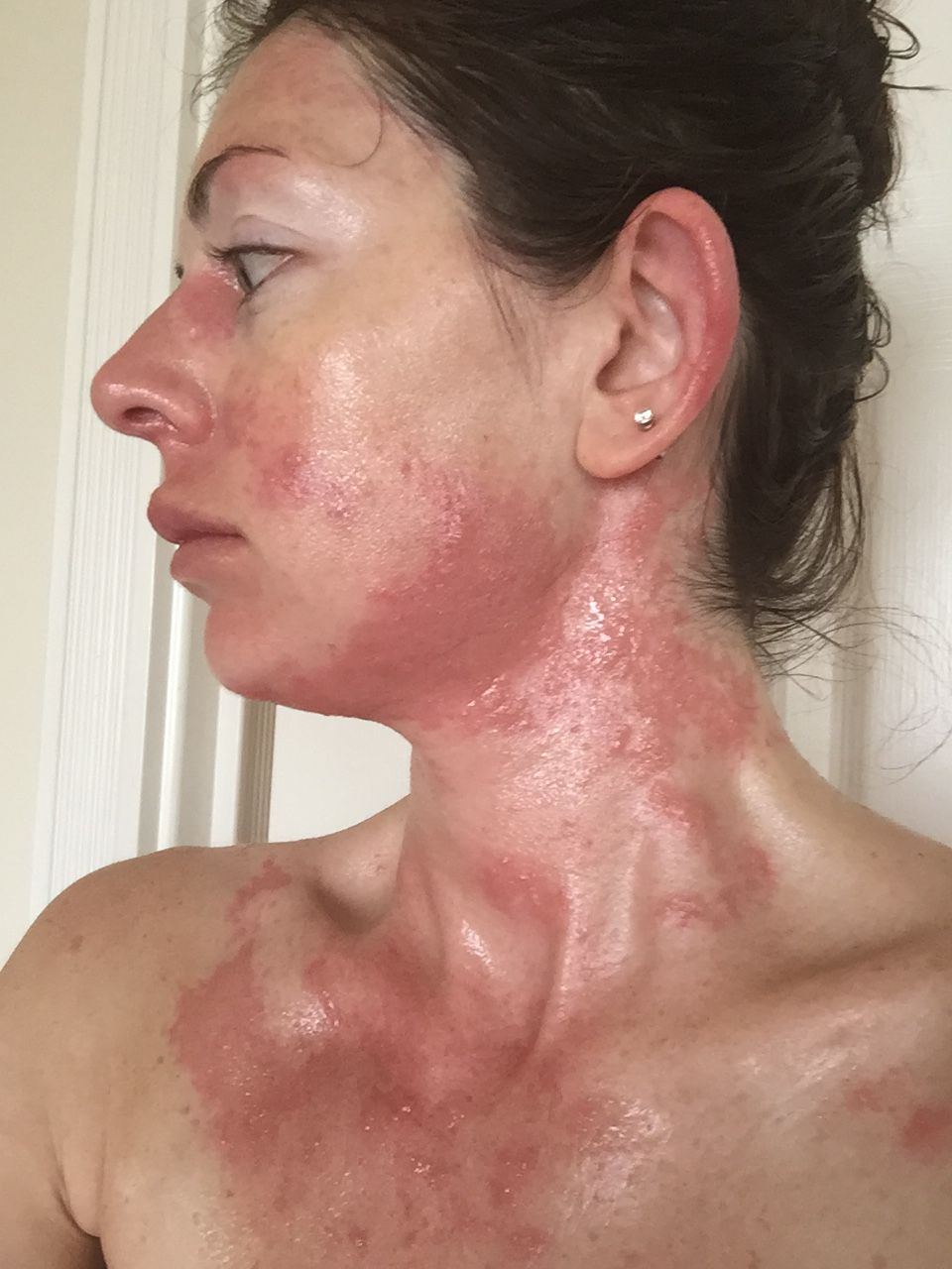 Filesevere Allergic Reaction To Urushiol Poison Oak 4 Days After