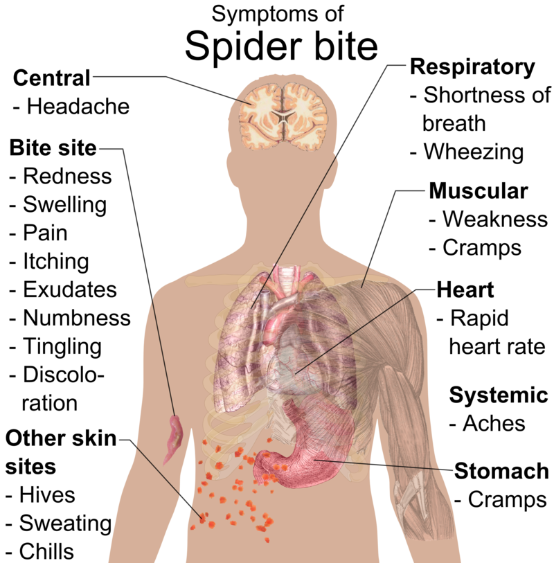 Symptoms of Spider bite.png
