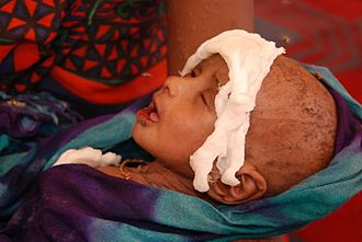 Poverty - A Somali boy receiving treatment for malnourishment at a health facility.