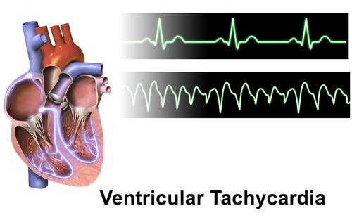 Ventricular Tachycardia.png