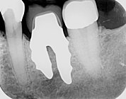 X-ray of root analogue dental implant two rooted left lower molar.jpg