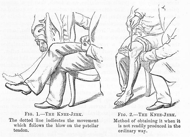 Hur man utlöser knäreflexen.