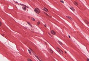 Cardiac muscle - Image: 414c Cardiacmuscle