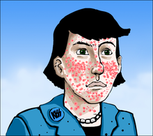 220px-Acne_vulgaris_ill_artlibre_jn.png