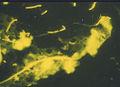 Bakterien15135.jpg
