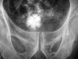 ويمكن مُلاحظة حصاة على شكل نجمة في المثانة البولية بالأشعة قريبة من الحوض.