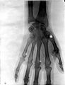Bones of the hand of W. Scott-Moncrieff, showing the effect Wellcome L0026315.jpg