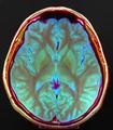 Brain MRI 131058 rgbca.png