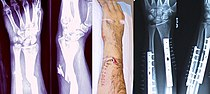 Broken fixed arm.jpg