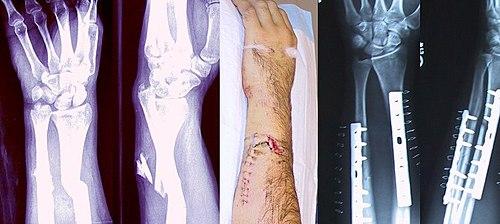 Exemple de fracture des os de l'avant-bras, et réparation (plaques et