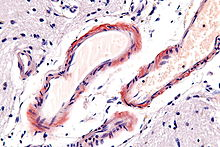 Cerebral amyloid angiopathy - very high mag.jpg