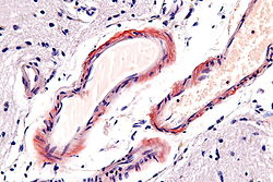 Cerebral amyloid angiopathy - very high mag.jpg
