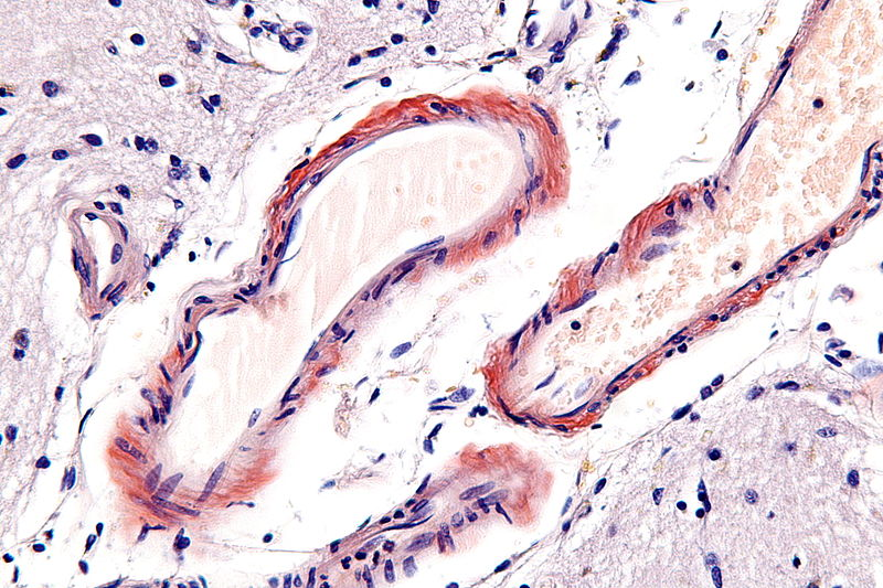 Cerebral amyloid angiopathy - very high mag