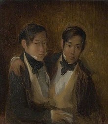 Shaking, asian siamese twins