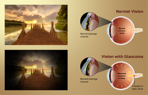 Depiction of vision for a Glaucoma patient