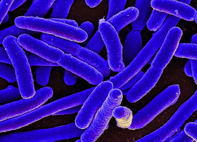 File:E. coli Bacteria (16578744517).jpg