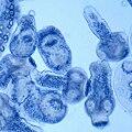 Echinococcus Proscolices.jpg