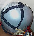 Full cap helmet headgear - fitted to patient 3.jpg