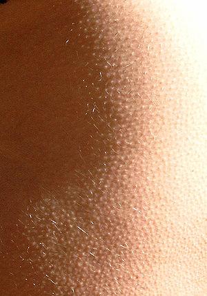 Goose bumps, goose pimples, goose flesh