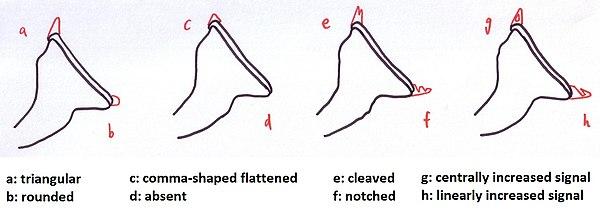 Glenoid Labrum Wikipedia