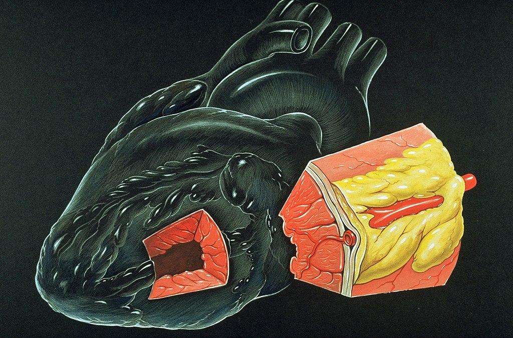file:heart myocardium diagram - wikimedia commons, Muscles