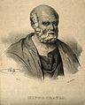 Hippocrates. Lithograph by J. Llanta, 1835. Wellcome V0002786.jpg