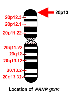 250px Location of PRNP gene in chromosome 20