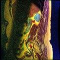 Lumbosacral MRI case 05 01.jpg