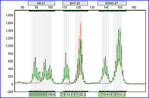 Microsatellite instability - Example of Microsatellite Instability in a DNA Electropherogram Trace