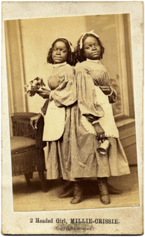 Millie and Christine McKoy - Millie and Christine in 1867
