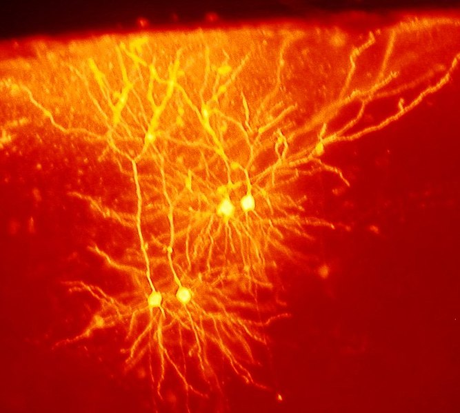 File:Mouse cingulate cortex neurons.jpg