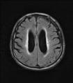 NPH MRI 106.png