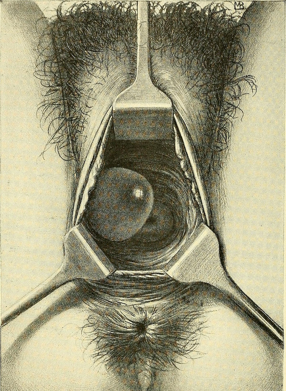 Vaginal cysts - Wikipedia