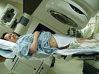 Radiation therapy.jpg
