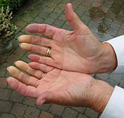 Hands with Raynaud's disease