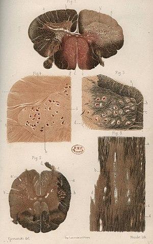 Esclerosis múltiple - Wikipedia, la enciclopedia libre