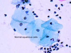 Dysplasia - Image: Squamous cells
