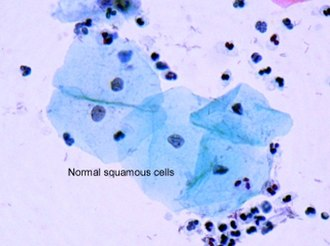 Dysplasia - Normal squamous cells