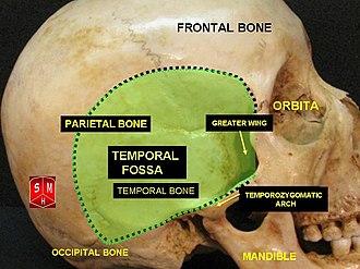 Temporal fossa - Image: Temporal fossa